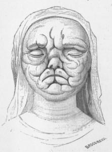 """""""Tête d'une jeune femme morte de la lèpre, musée de l'hôpital Saint-Denis"""", par Badoureau, in Étienne Lancereaux, Traité d'anatomie pathologique, Delahaye et Lecrosnier, Paris, 1875-1889, p. 269."""