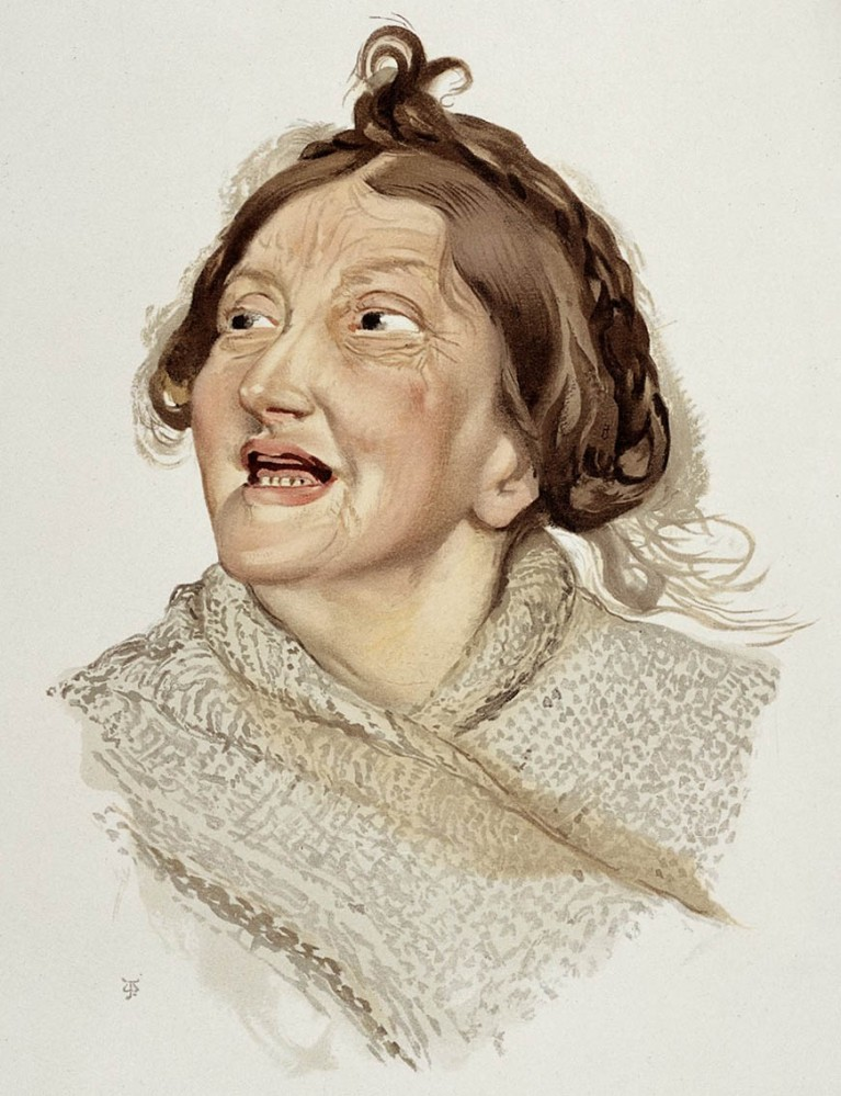 J. Williamson, Femme atteinte de manie hilarante. Credit: Wellcome Library, London. Wellcome Images images@wellcome.ac.uk http://wellcomeimages.org. Creative Commons Attribution only licence CC BY 4.0 http://creativecommons.org/licenses/by/4.0/